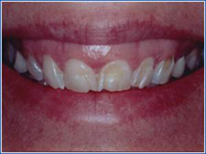Description: http://www.cosmeticdentistglebe.com.au/wp-content/themes/kiseki/gallery/10-before.jpg