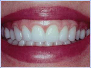 Description: http://www.cosmeticdentistglebe.com.au/wp-content/themes/kiseki/gallery/10-after.jpg