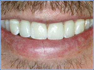 Description: http://www.cosmeticdentistglebe.com.au/wp-content/themes/kiseki/gallery/01-after.jpg