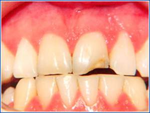 Description: http://www.cosmeticdentistglebe.com.au/wp-content/themes/kiseki/gallery/02-before.jpg