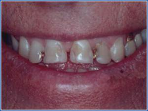 Description: http://www.cosmeticdentistglebe.com.au/wp-content/themes/kiseki/gallery/03-before.jpg