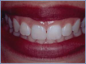 Description: http://www.cosmeticdentistglebe.com.au/wp-content/themes/kiseki/gallery/06-before.jpg