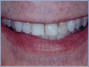 Description: http://www.cosmeticdentistglebe.com.au/wp-content/themes/kiseki/gallery/07-before.jpg