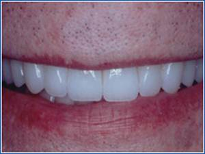Description: http://www.cosmeticdentistglebe.com.au/wp-content/themes/kiseki/gallery/07-after.jpg