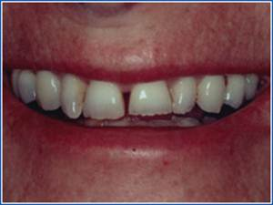Description: http://www.cosmeticdentistglebe.com.au/wp-content/themes/kiseki/gallery/08-before.jpg