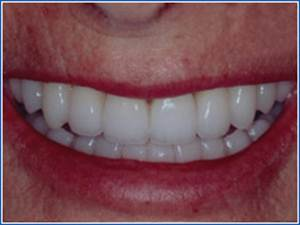 Description: http://www.cosmeticdentistglebe.com.au/wp-content/themes/kiseki/gallery/08-after.jpg