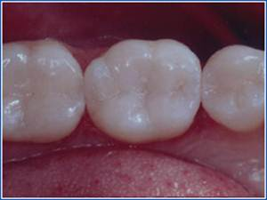 Description: http://www.cosmeticdentistglebe.com.au/wp-content/themes/kiseki/gallery/09-after-a.jpg