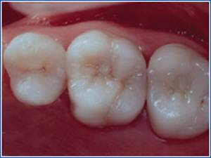 Description: http://www.cosmeticdentistglebe.com.au/wp-content/themes/kiseki/gallery/09-after-b.jpg